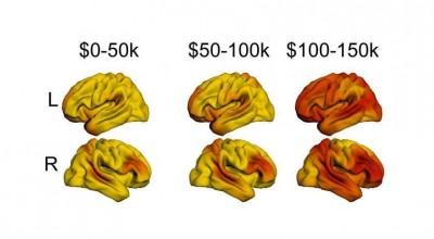 income brain